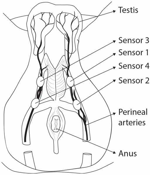 Position of sensors on the Perineum.