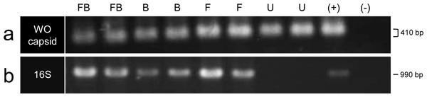 PCR amplification of the (A) WO minor capsid (orf7) gene and (B) 16S ribosomal RNA gene.