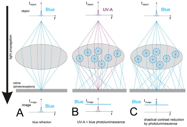 The optical problem caused by the UV-A-induced photoluminescent diffuse blue light in the image formation by a dioptric apparatus.