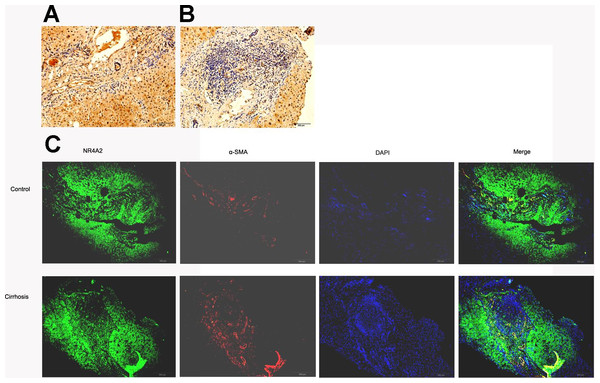 NR4A2 expression in human liver tissues.