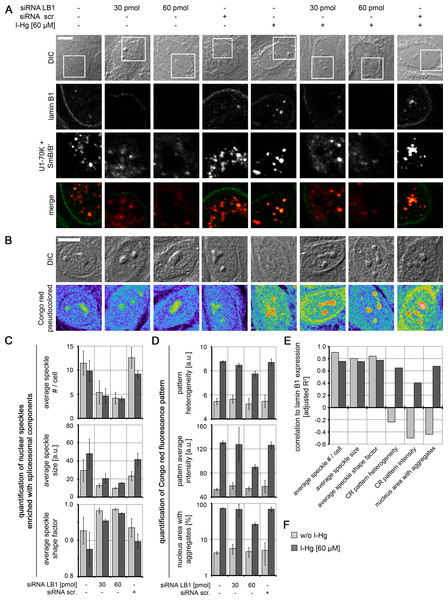 Nucleoskeletal protein lamin B1 regulates formation of I-Hg-induced nuclear amyloid.