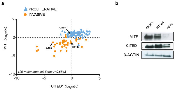 CITED1 expression correlates with MITF expression.