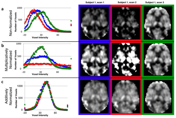 Additive intensity normalization improves pASL image quality.