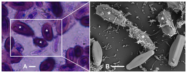 Identification of A. minutissimum capsules (asterisks) by successive observation of cell clusters by first bright-field and then scanning electron microscopy of xenic biofilm (scale bars: 5 µm).