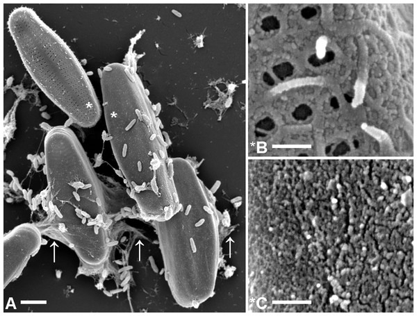 Comparison of microstructures on A. minutissimum cell surfaces in a xenic biofilm.
