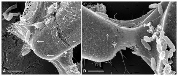 Fibrillar microstructures (arrow pairs) within capsule material of A. minutissimum cells in xenic biofilm are revealed by mechanical stress (scale bars = 1 µm).