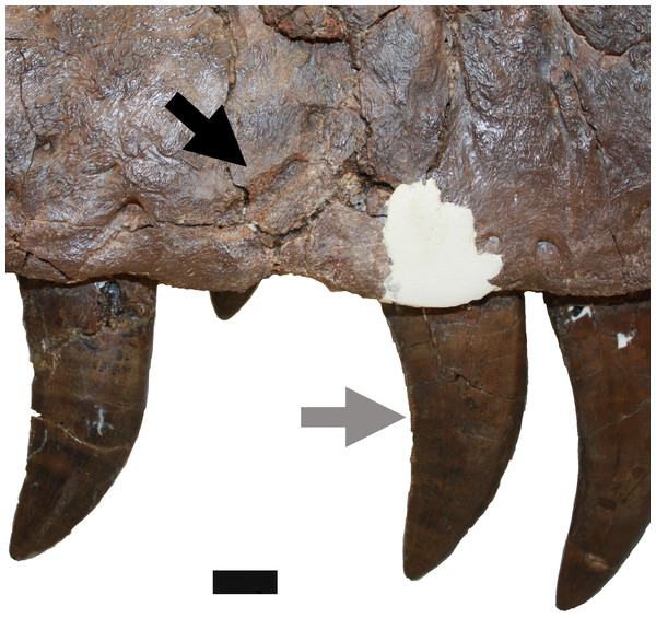 Damage on the right maxilla.