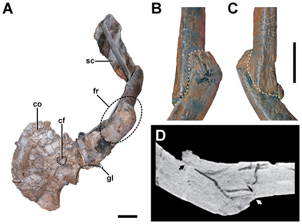 Pathologic scapula of SMA 0005.