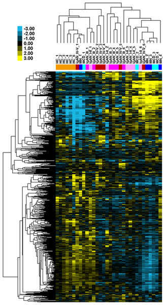 Global urinary miRNA profiling in patients with IgAN and controls.