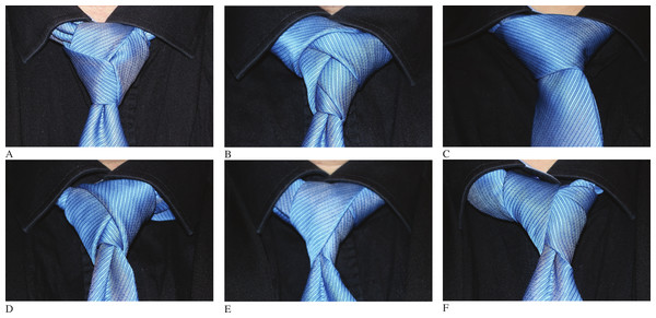 Some specific tie-knot examples.