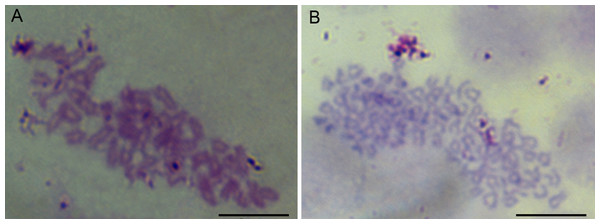 Chromosome metaphases of POMSCS(2n) and POMSCS(3n) cells.
