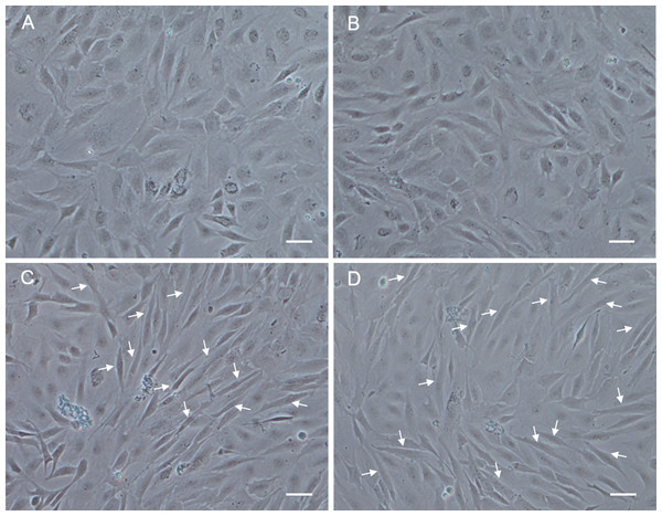 Morphological changes of POMSCS(2n) and POMSCS(3n) cells after differentiation.