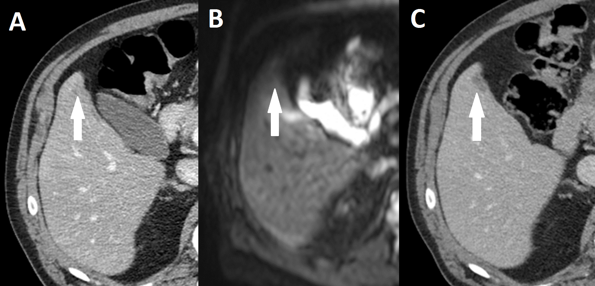 Preoperative Ct Versus Diffusion Weighted Magnetic Resonance Imaging Of The Liver In Patients With Rectal Cancer A Prospective Randomized Trial Peerj