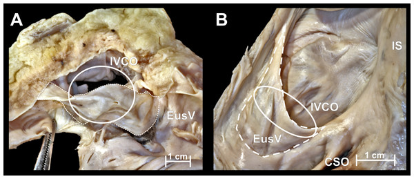 Photographs of cadaveric heart specimen.