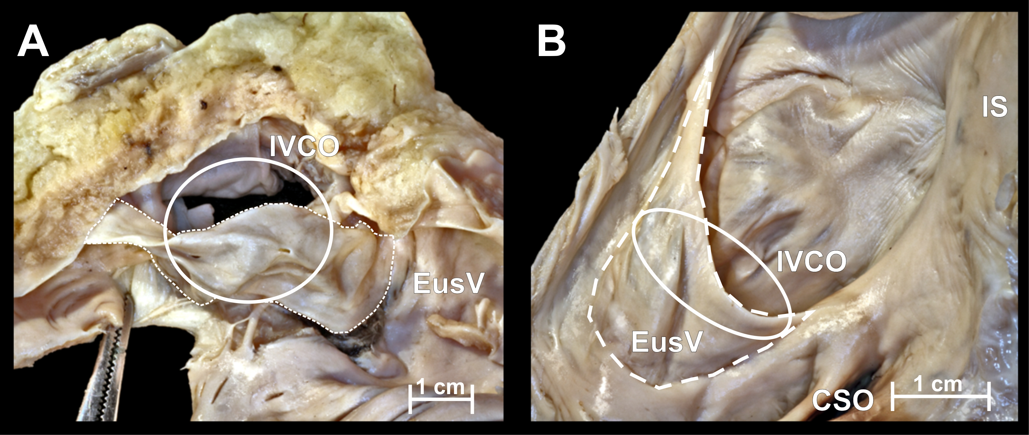 Anatomical barriers in the right atrium to the coronary sinus ...