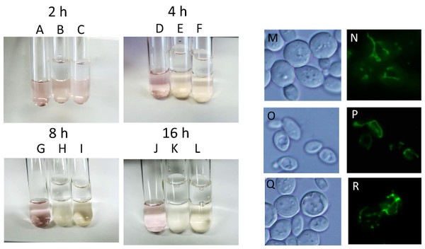 Residual mitochondrial transmembrane potential decreases unsaturated fatty acid level in sake yeast during alcoholic fermentation oxidoreductive status and mitochondrial morphology of sake yeast during alcoholic fermentation.