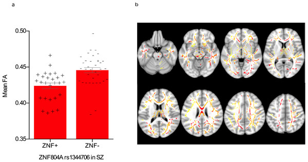 Effect of rs1344706 genotype on fractional anisotropy in schizophrenia.