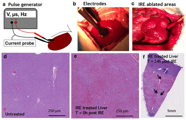Ablation procedure with irreversible electroporation.