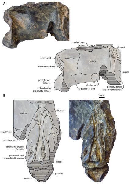Temporal fossa and vertex.