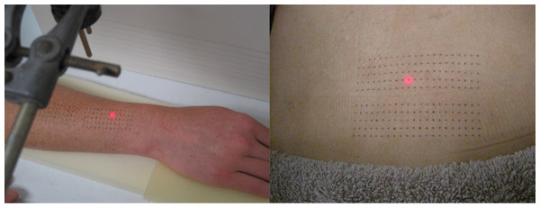 Dot-grids as drawn onto forearm (A) and back (B).