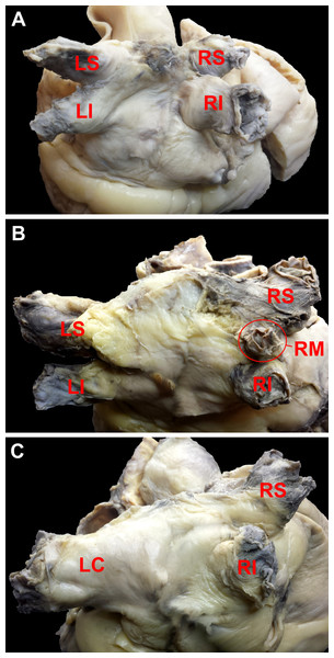 Photograph of cadaveric heart specimens with examples of pulmonary veins ostia patterns (view of the posterior and superior wall of the left atrium).