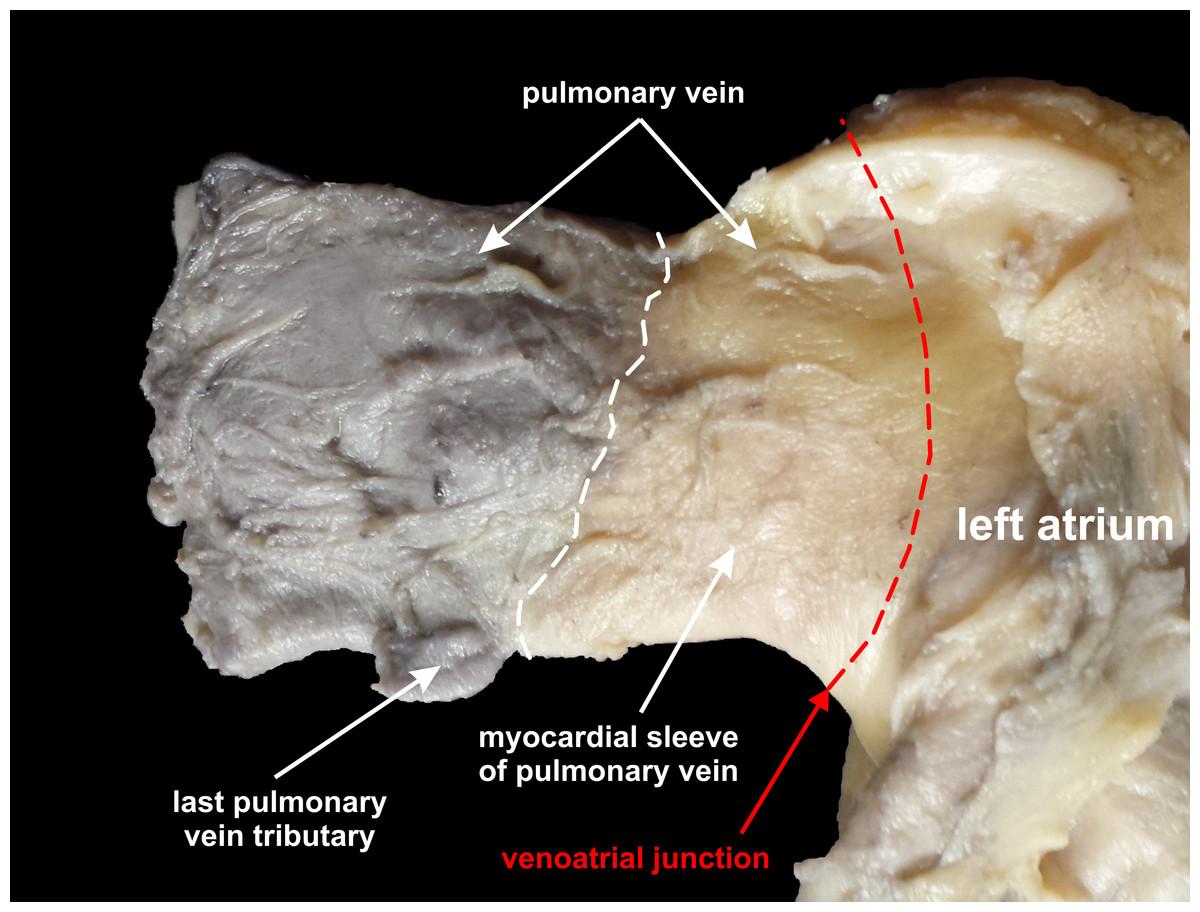 Normal distal pulmonary vein anatomy [PeerJ]