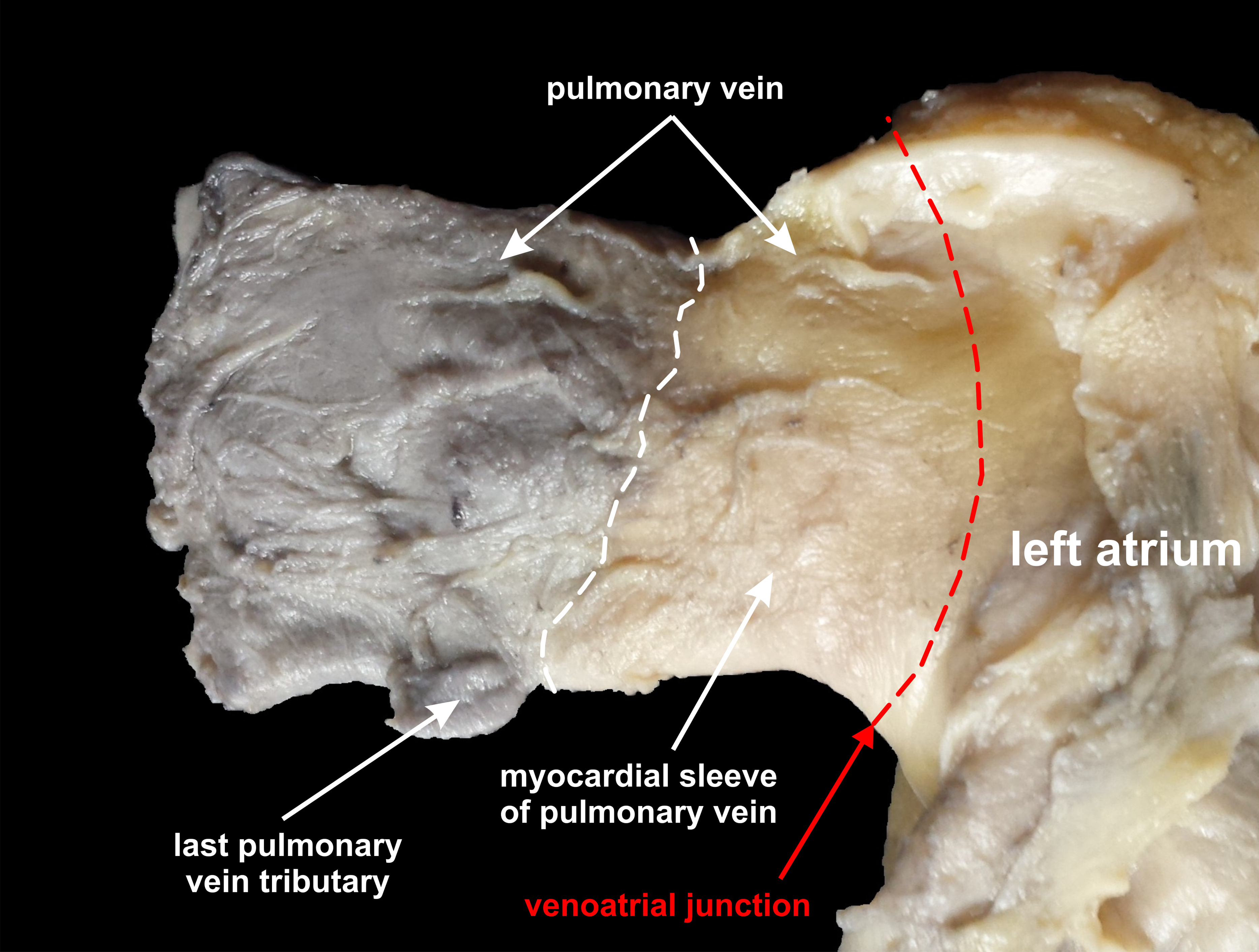 normal distal pulmonary vein anatomy  peerj