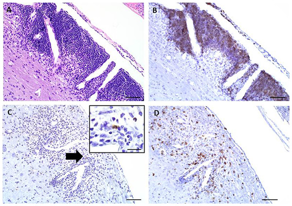 Representative images of key immunohistochemical markers run on a longitudinally sectioned, decalcified spinal column from an EAE mouse with a clinical EAE score of 4.