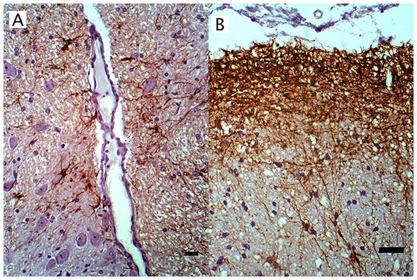 IHC of GFAP+ astrocytes in WNV infected equine brain.