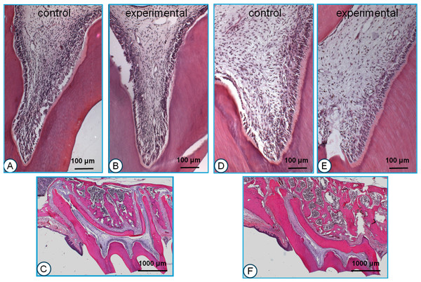 Histological sections of young (A, B, C) and old rats (D, E, F).