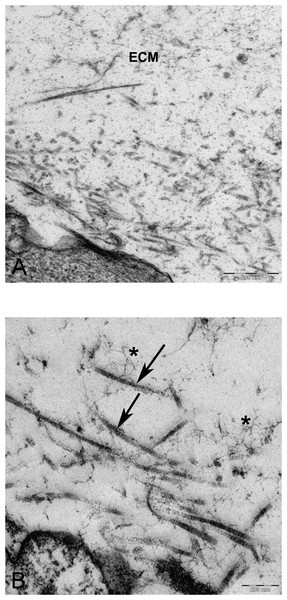TEM images of extra cellular matrix of MSCs differentiated in alginate bead after 21 days in chondrogenic medium.
