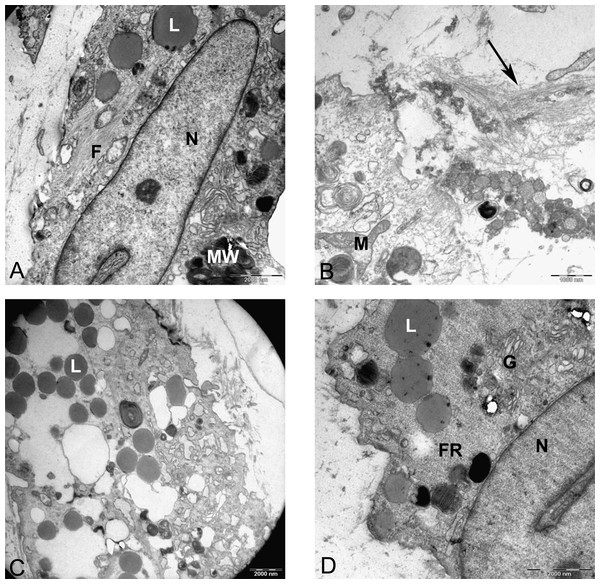 TEM images representing cell death in pellet culture after 21 days in chondrogenic medium.