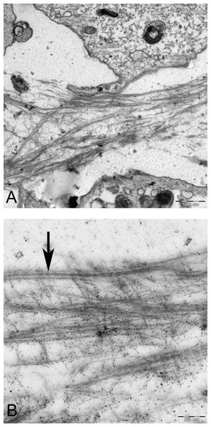 TEM images of extracellular matrix of MSCs in pellet culture after 21 days in chondrogenic medium.