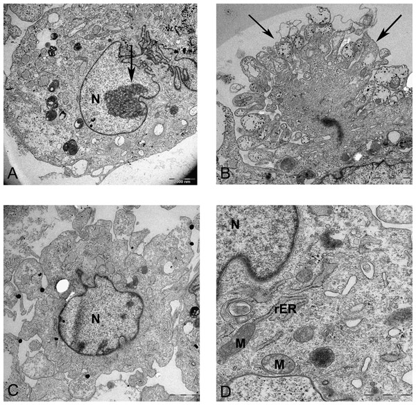 Transmission electron microscope images of mesenchymal stromal cells at day 0.