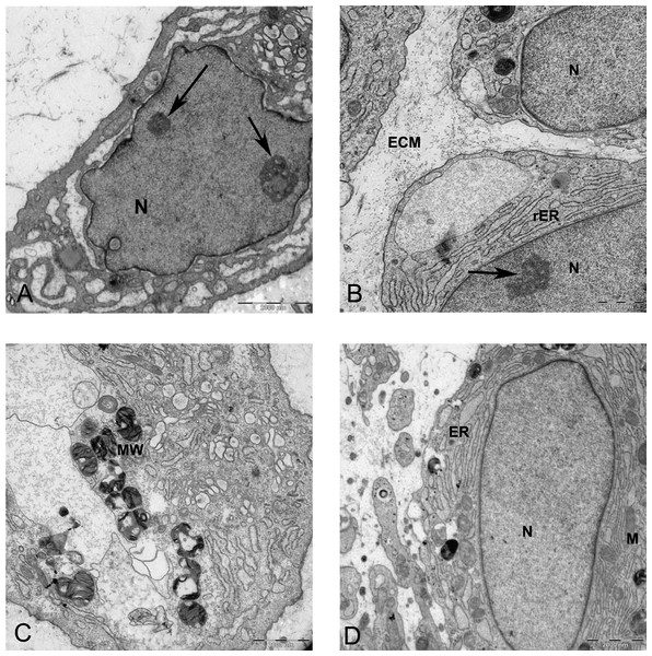 TEM images of MSCs differentiated in alginate bead after 21 days in chondrogenic medium.