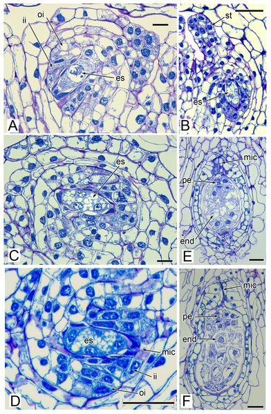 Carpels and ovules of Lacandonia brasiliana (LM).