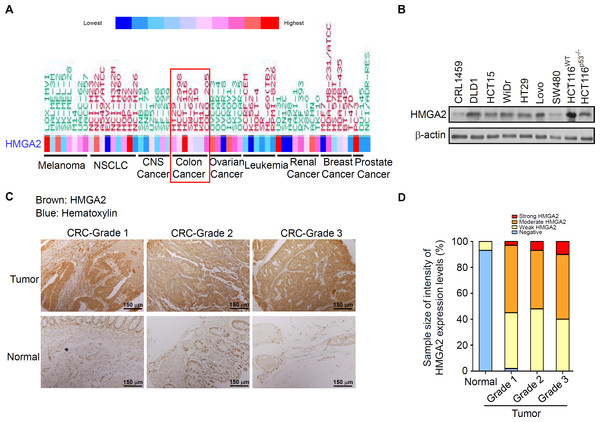 HMGA2 was overexpressed in Colorectal Cancer (CRC) cell lines and tumors.
