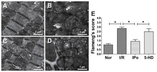 Transmission electron microscopy analysis of myocardium damage.