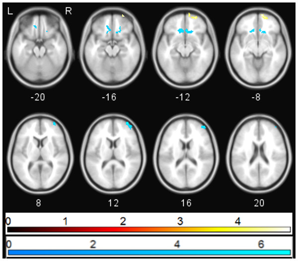 Correlation between PANSS depression and sgACC coupling.