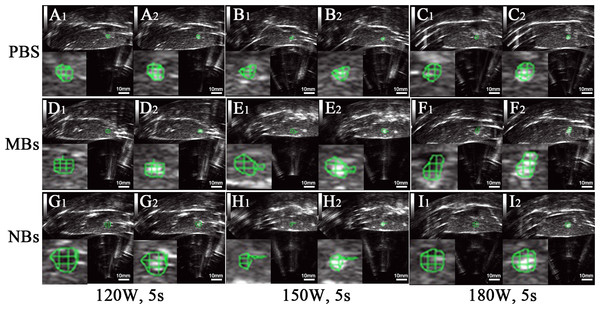 Ultrasonoscopy of the targeted area in excised bovine liver before and after HIFU ablation.