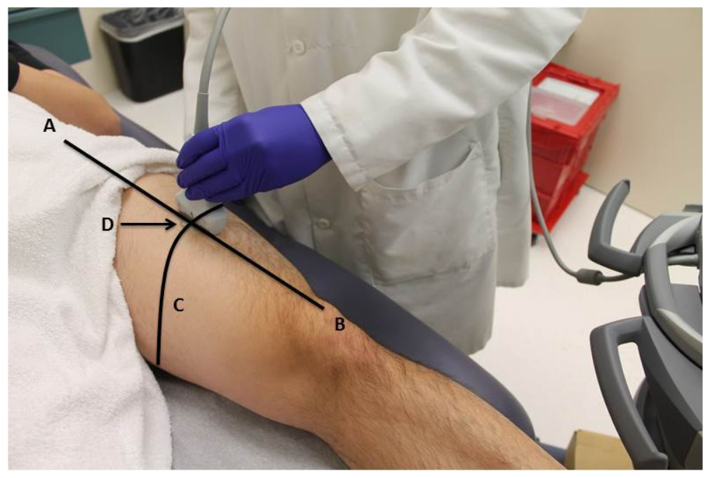 ultrasound estimates of muscle quality in older adults  reliability and comparison of photoshop