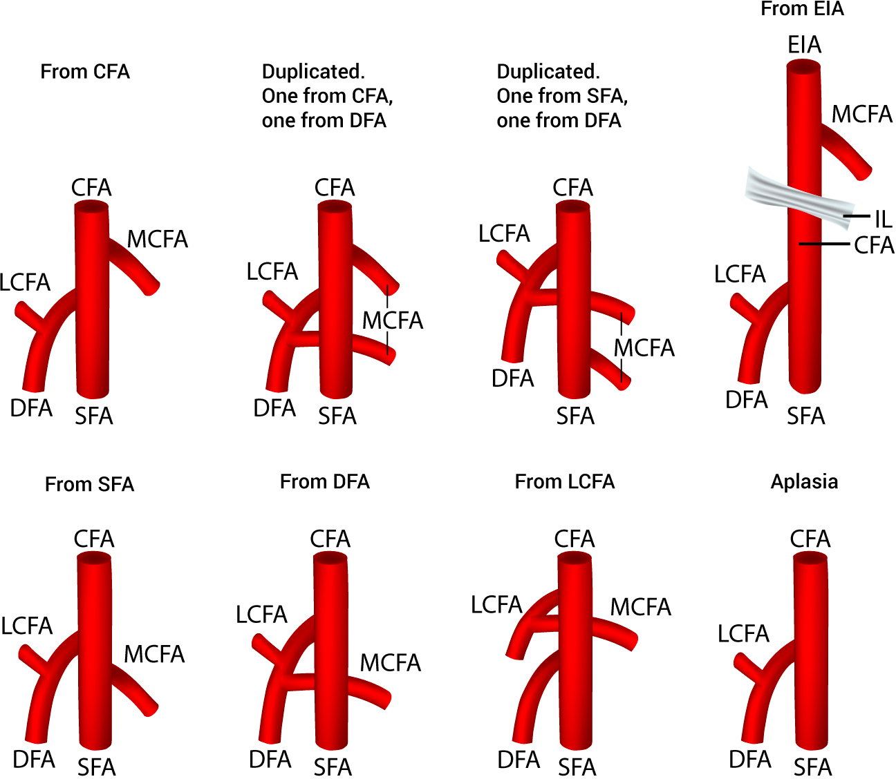 The Origin Of The Medial Circumflex Femoral Artery A Meta Analysis