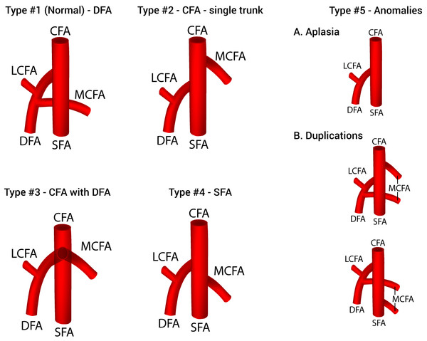 A new classification system of the origin of the medial circumflex femoral artery.