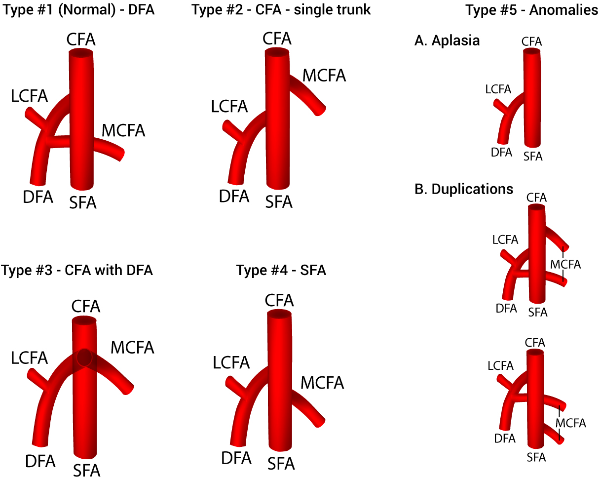 the origin of the medial circumflex femoral artery  a meta