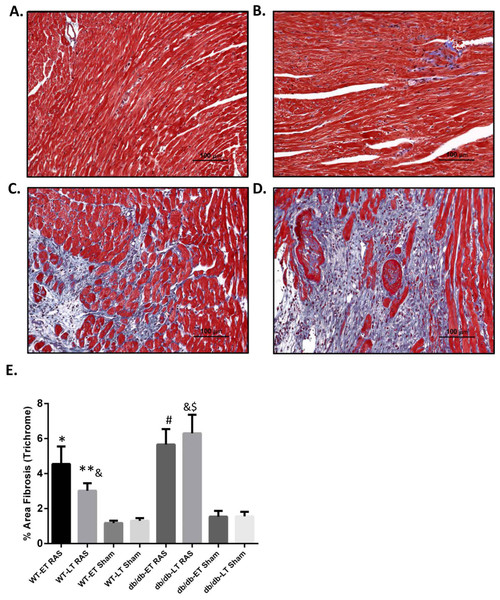 Increased cardiac fibrosis in db/db RAS mice compared to WT at later time points.