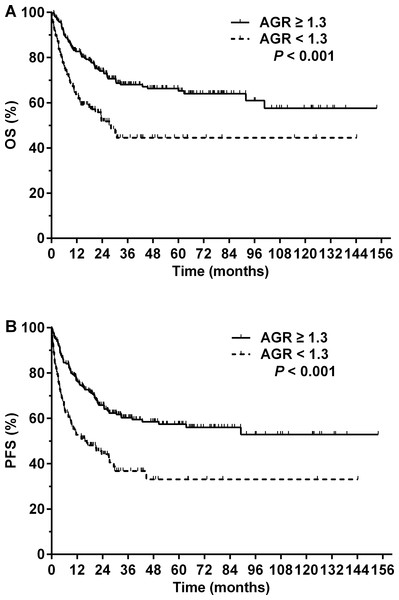 Prognosis of patients with NK/T-cell lymphoma according to the pretreatment serum albumin to globulin ratio (AGR).