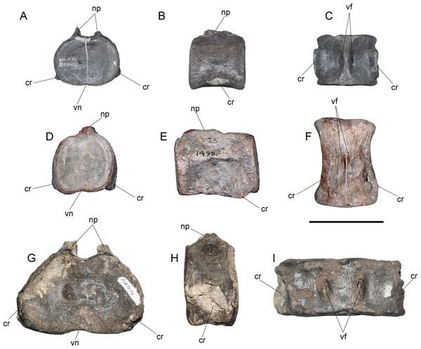 Three main cervical morphotypes among elasmosaurids.