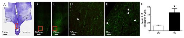 Kisspeptin in the bovine arcuate nucleus.