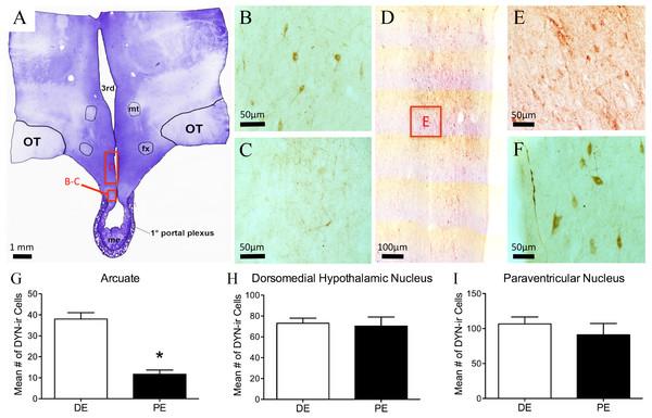 Dynorphin (DYN) in the bovine hypothalamus.