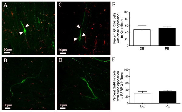 Neuropeptide connectivity to GnRH in the bovine hypothalamus.